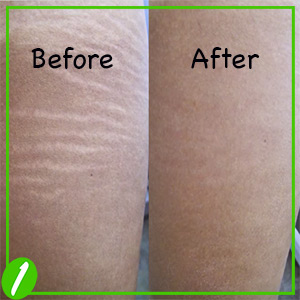 How To Get Rid Of Stretch Marks? – Guide With Simple Process