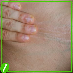 Effective Tips to Prevent Stretch Marks
