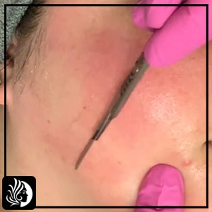 Dermaplaning Gone Wrong! – What Should You Need to Do?